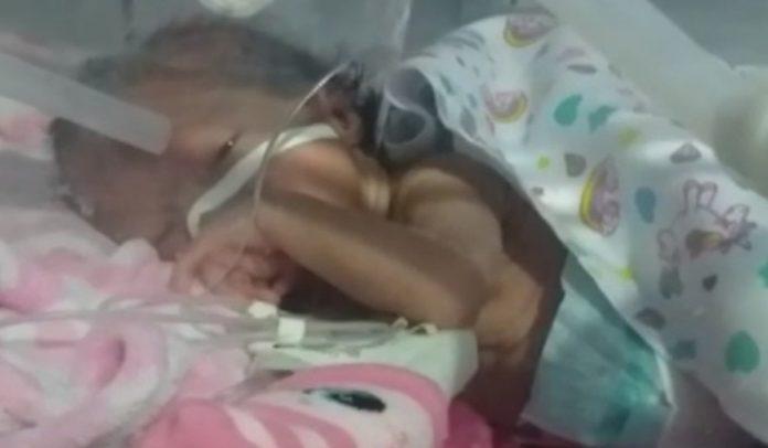 bebê internada em porto seguro precisa de cirurgia